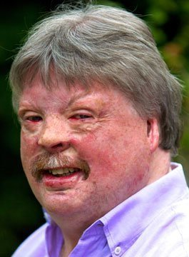 Simon Weston - Inspirational Military Speaker
